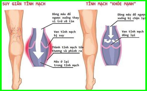 Chữa hiệu quả bệnh suy giãn tĩnh mạch chân Chua-suy-gian-tinh-mach-chan-4